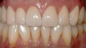 After photo of teeth.